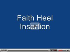 heel insertion